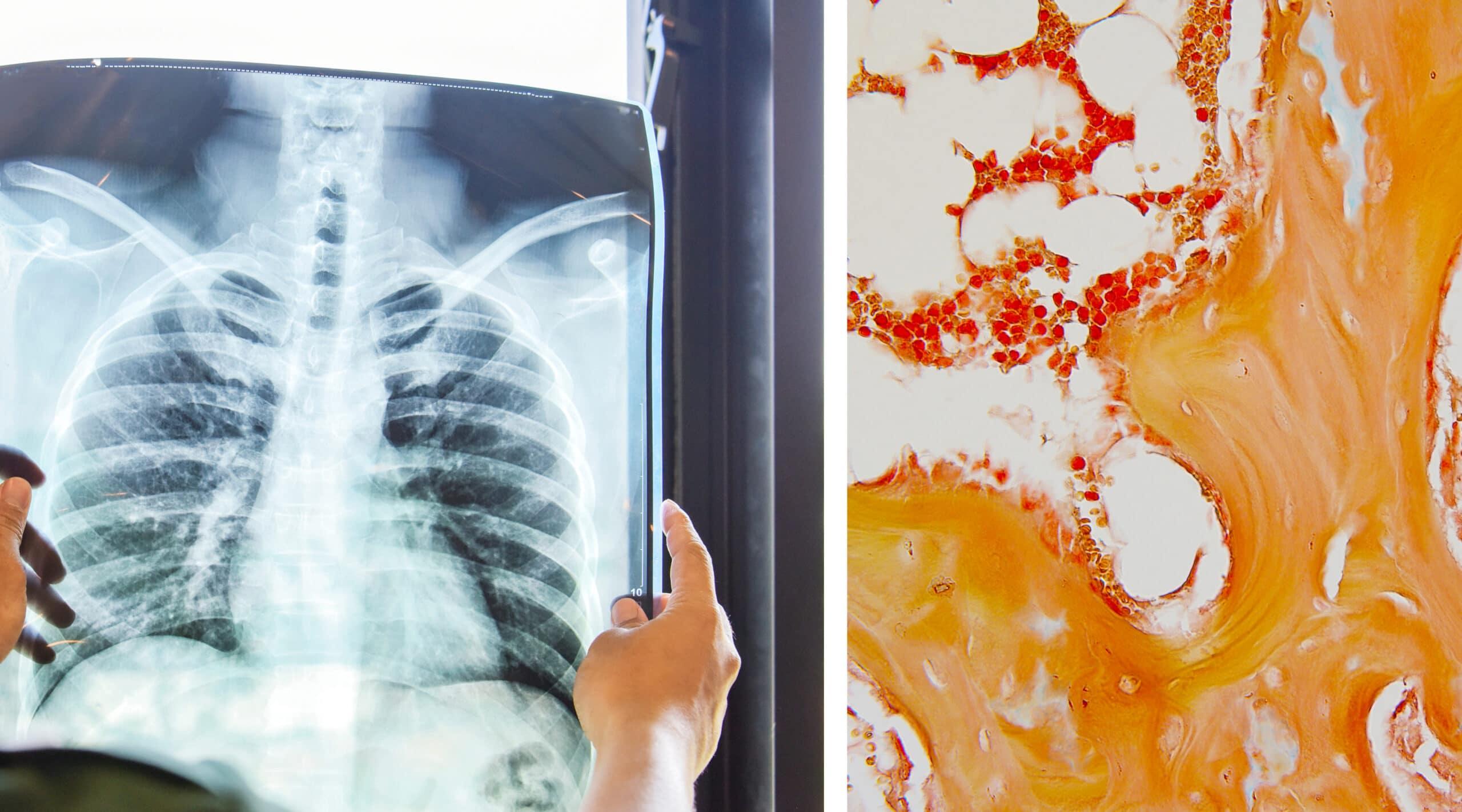 bone marrow suppression