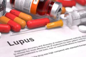 Lupus Tx